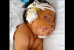 中国 - 授乳中に噛んだという理由で母親に90回もハサミで刺された赤ちゃん/Baby Stabbed 90 Times With Scissors By His Chinese Mother
