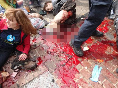 ボストン・マラソン 爆破事件 写真モザイク有り (3)